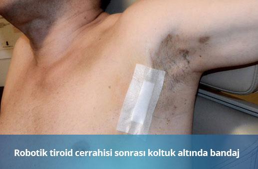robotik-tiroid-cerrahisi-bandaj