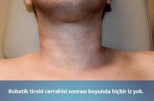 robotik-tiroid-cerrahisi-sonrasi
